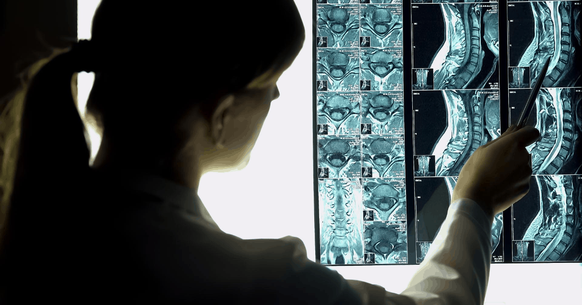 Preparing for Initial Consultation with a Spinal Cord Injury Attorney